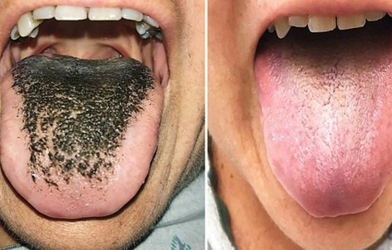 black a pictures hairy is what tongue