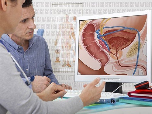 10 signs of prostate cancer that might be missed