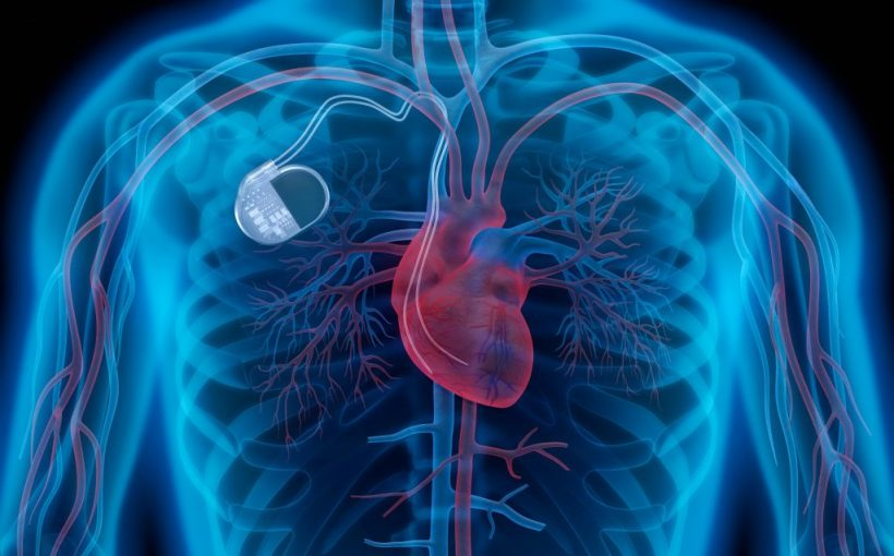 Caution: health risk for heart patients - Medtronic 157 000 heart